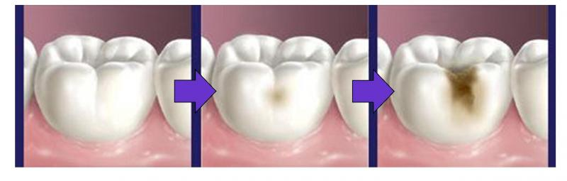 Tooth decay results from the infection with bacteria in our teeth. If it continues, the enamel in the surface of our teeth will be weakened and destroyed and forming a cavity